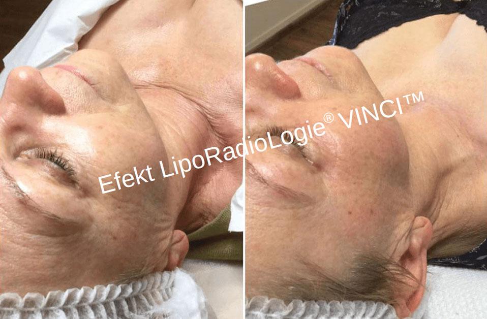 efekty_liporadiologie_vinci_tolmed (2)